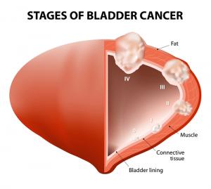 Рак мочевого3