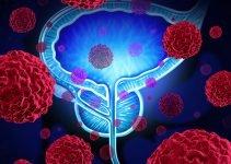 Лечение рака предстательной железы в клиниках Израиля