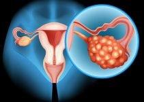 Рак яичников – точная диагностика и новаторское лечение в Израиле
