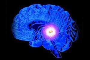 Киста головного мозга: лечение согласно международным стандартам