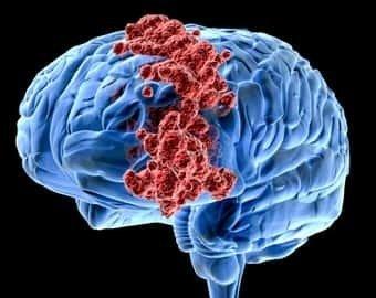 Опухоли головного мозга: лечение в Израиле, в лучших клиниках – ведущие врачи, качественная диагностика, эффективная терапия по доступной цене