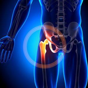 Какие показания и противопоказания имеет операция эндопротезирования