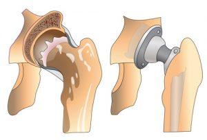 Замена тазобедренного сустава на искусственный: возможности метода
