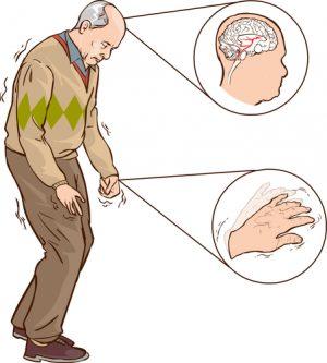 признаки синдрома Паркинсона