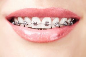 Ортодонтия в Израиле