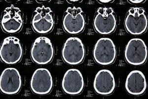 Операции на головном мозге в Израиле
