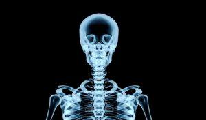Реабилитация после костно-пластической трепанации черепа