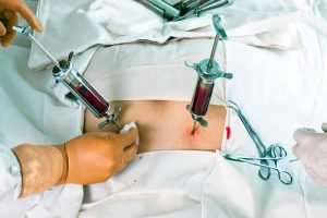 Пересадка костного мозга в Китае