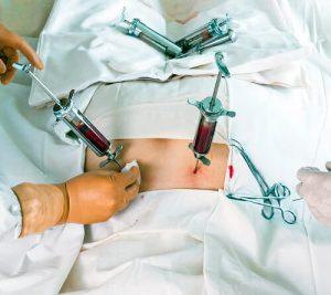 Пересадка костного мозга в Турции